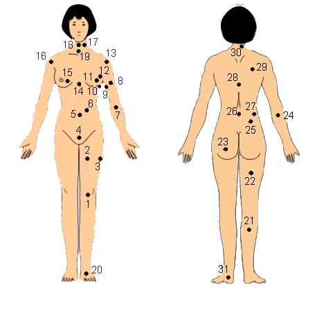 nốt ruồi trên cơ thể phụ nữ
